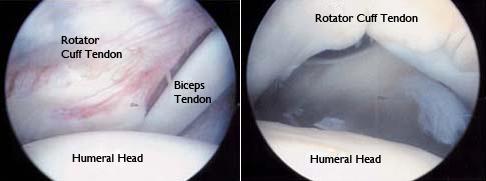 Shoulder Arthoscopy Image 4